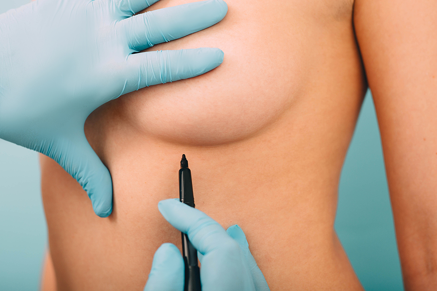 Woman getting oncoplastic breast surgery in Melbourne
